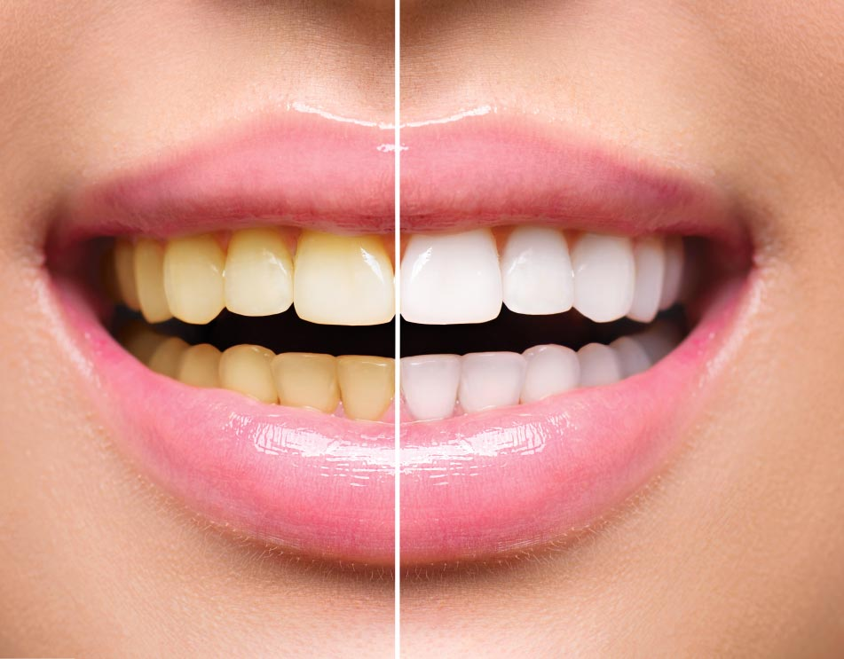 Before and after smile transformation of yellow teeth to whiter teeth increasing 3 shades lighter brighter whiter teeth after whitening treatment