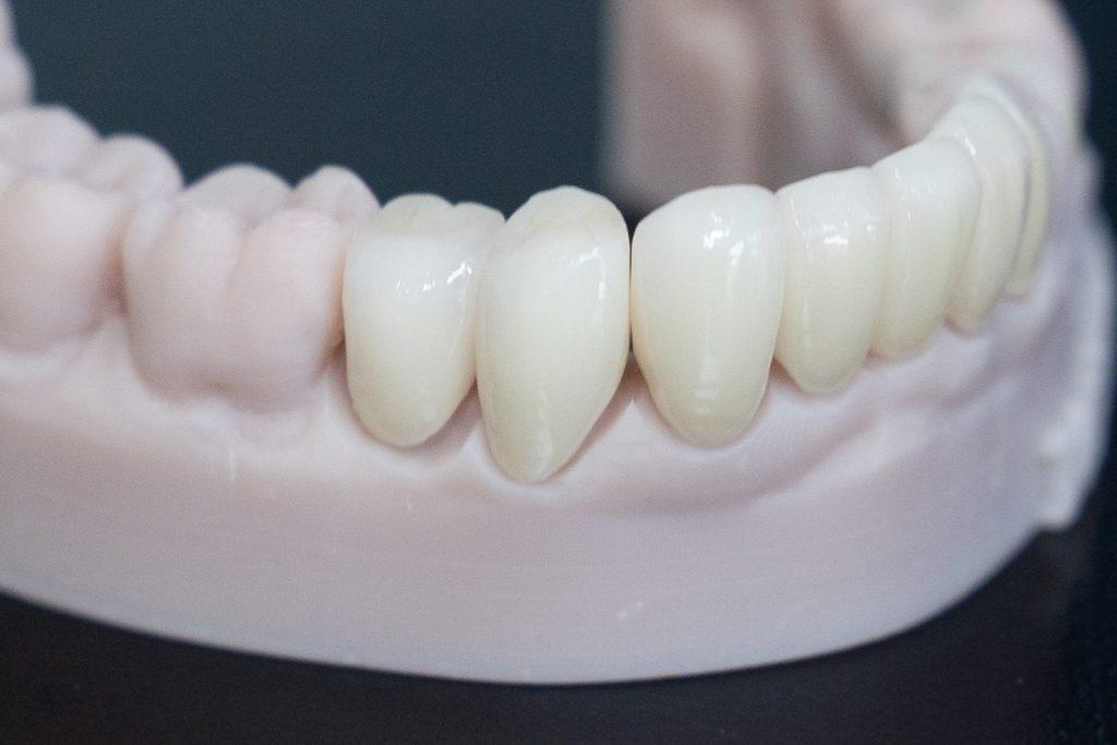 white lustrous beautiful natural looking bruxzir emax porcelain crowns displayed on model of lower mandibular teeth