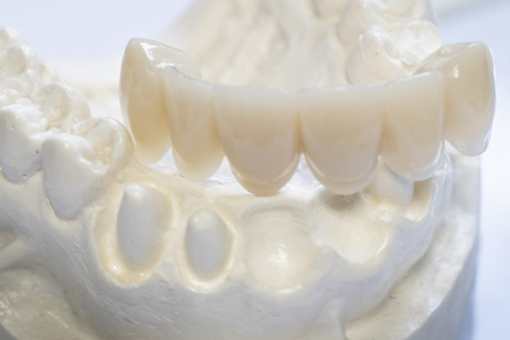 white natural shiny dental porcelain bridge to replace missing or extracted teeth displayed on model of lower mandibular teeth